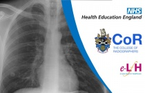 Image Interpretation - Plain X-rays of the Adult Chest: Nodules