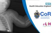 Image Interpretation of the Paediatric Skeleton: Introduction