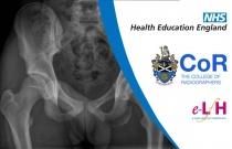 Image Interpretation of the Paediatric Skeleton: Pelvis and Hip - Session 2