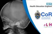 Image Interpretation of the Paediatric Skeleton: Suspected Physical Abuse - Case Study 3