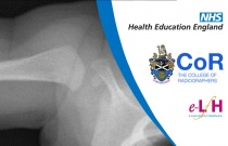 Image Interpretation of the Paediatric Skeleton: Suspected Physical Abuse - Case Study 4