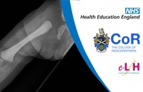 Image Interpretation of the Paediatric Skeleton: Suspected Physical Abuse - Case Study 5
