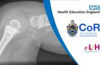 Image Interpretation of the Paediatric Skeleton: Suspected Physical Abuse - Case Study 6