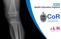 Image Interpretation of the Paediatric Skeleton: Suspected Physical Abuse - Case Study 7