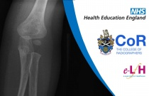 Image Interpretation of the Paediatric Skeleton: Suspected Physical Abuse - Case Study 9