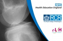 Acute Osteomyelitis - Radiology