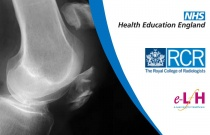 Anterior Knee Pain - Radiology