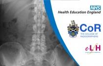 Image Interpretation - Radiographs of the Adult Abdomen: Anatomy
