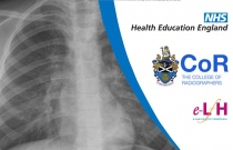 Image Interpretation - Radiographs of the Paediatric Chest: Anatomy - Session 1
