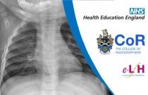 Image Interpretation - Radiographs of the Paediatric Chest: Anatomy - Session 2