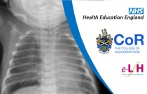 Image Interpretation - Radiographs of the Paediatric Chest: The Normal Chest Radiograph