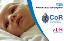Image Interpretation - Radiographs of the Paediatric Chest: Neonatal Disorders - Session 2