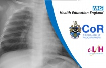 Image Interpretation - Radiographs of the Paediatric Chest: Infection - Session 1
