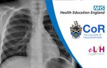 Image Interpretation - Radiographs of the Paediatric Chest: Cystic