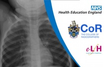 Image Interpretation - Radiographs of the Paediatric Chest: Lines, Tubes and Instruments