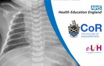 Image Interpretation - Radiographs of the Paediatric Chest: Self-Evaluation Session 1