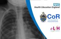 Image Interpretation - Radiographs of the Paediatric Chest: Self-Evaluation Session 2