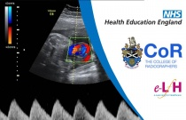 Image Interpretation - Obstetric Ultrasound: Applications of Doppler Ultrasound