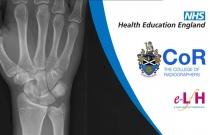 Anatomy of the Wrist (Adult) - Radiology