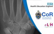 Anatomy of the Carpal Bones (Adult) - Radiology