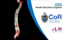 Anatomy of the Lumbar Spine (Adult) - Radiology