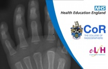 Anatomy of the Hand (Paediatric) - Radiology