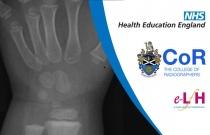 Anatomy of the Wrist (Paediatric) - Radiology