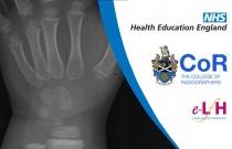 Anatomy of the Radius and Ulna (Paediatric) - Radiology