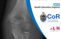 Anatomy of the Elbow (Paediatric) - Radiology