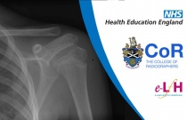 Anatomy of the Shoulder and Humerus (Paediatric) - Radiology