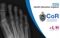Anatomy of the Foot and Calcaneum (Paediatric) - Radiology