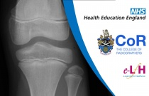 Anatomy of the Knee, Tibia and Fibula (Paediatric) - Radiology