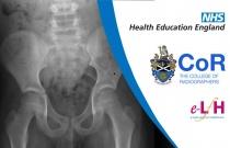 Anatomy of the Pelvis and Hip (Paediatric) - Radiology