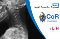 Anatomy of the Bones of the Thorax and Spine (Paediatric) - Radiology