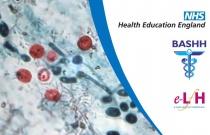 Cryptosporidiosis and Microsporidiosis - HIV