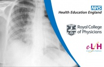 Causes and Risk Factors for Primary and Secondary Pneumothorax