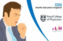 Common and Serious Respiratory Causes of Cough