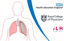 Definition and Description of Bronchiectasis