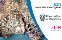 Mechanisms behind Haemoptysis in Bronchiectasis