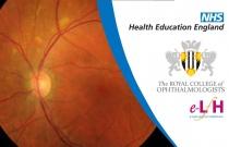 Electro-oculography