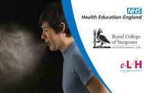 Infection Risks (Patient, Theatre, Staff) Laminar Flow