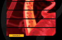 Vascular Access: A Lifeline for Dialysis: Kidney School Module 8