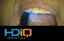 Crown, Abutment and Implant with full Prosthetic Impression