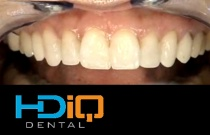Indirect porcelain veneers Part I: The mock-up