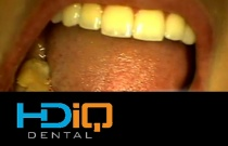 Predictable Results in Adhesive Esthetic Dentistry