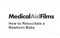 How to Resucitate a Newborn Baby