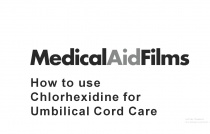 How to use Chlorhexidine for Umbilical Cord Care