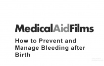 How to Prevent and Manage Bleeding after Birth (Primary Postpartum Haemorrhage)