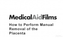 How to Perform Manual Removal of the Placenta after Birth