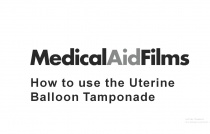 How to use the Uterine Balloon Tamponade